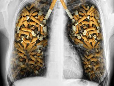 shutterstock 154687589 993x1024 2 400x300 - 【コラム・タバコ】 ヘビースモーカーはニコリキで禁煙できるか?その2 【ニコリキ・禁煙】