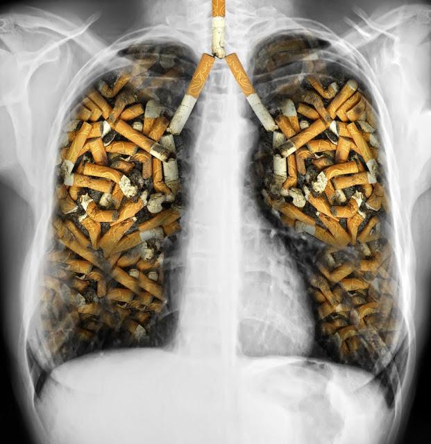 shutterstock 154687589 993x1024 2 - 【コラム・タバコ】 ヘビースモーカーはニコリキで禁煙できるか?その2 【ニコリキ・禁煙】