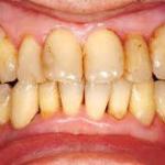 image 150x150 - 【医療】「歯が残念」そのひと言が刺さりに刺さり、スパッと禁煙! BBAが見た、女の世界